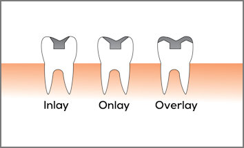 Dental Restorations - Inlays and Onlays
