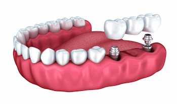 Dental Implant Specialists in Chandler