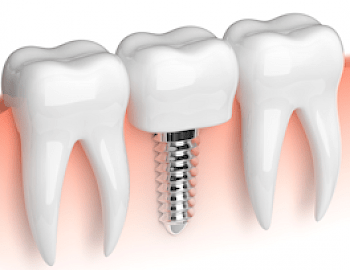 Dental Implant Dentists in Tempe