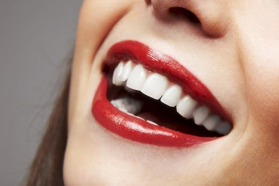 Pros and Cons of Dental Veneers