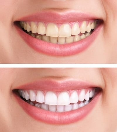 Steps Required for Dentist Office Teeth Whitening Procedure