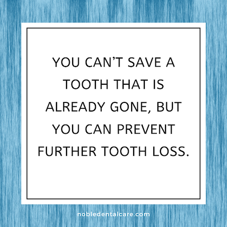 You can't save a tooth that is already gone, but you can prevent further tooth loss