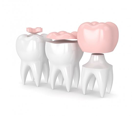 Dental filling to treat tooth cavity.